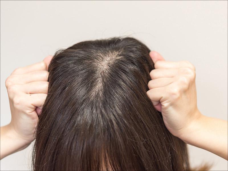 つむじハゲが気になる20代女性の悩み\u2026\u2026薄毛の原因と対策は?